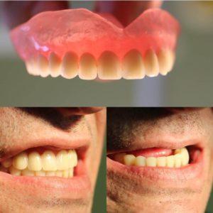 протез акри фри в полости рта