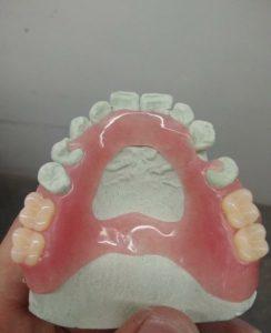 протез acry free на верхнюю челюсть