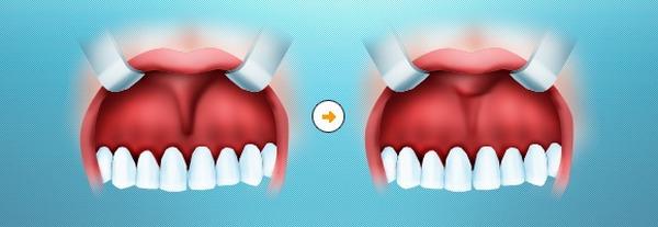 операция пластика уздечки верхней губы