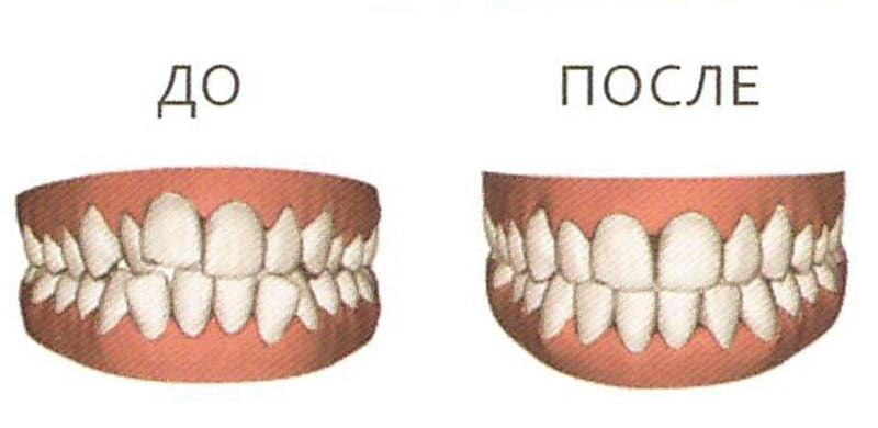 http://www.dentumclinic.ru/upload/userfiles/file/virtualnaja_model.jpg