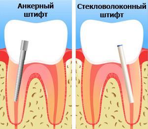 http://www.dentumclinic.ru/upload/userfiles/file/vosstanovlenie-zuba-na-shtifte-gelio.jpg