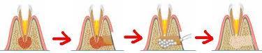 киста зуба лечение