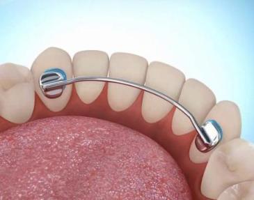 несъемный ретейнер для зубов