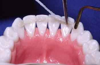 шинирование зубов стекловолокно