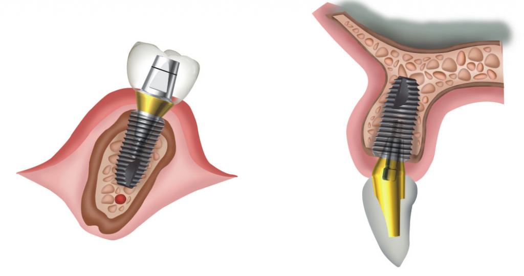 имплантаты superline