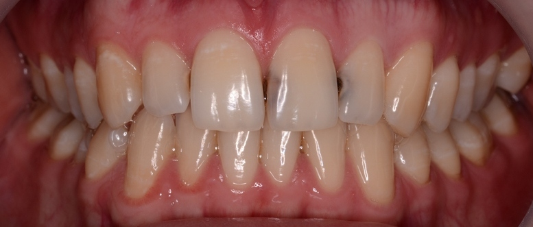 кариеса переднего зуба фото
