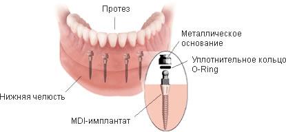 мини имплантат