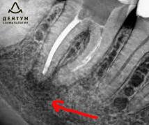 болит зуб без нерва