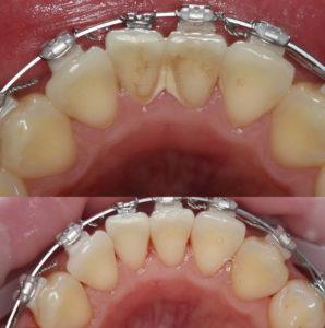 чистка зубов при ношении брекетов