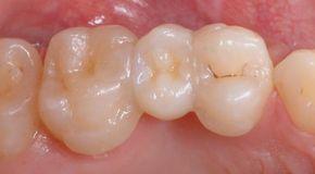 адгезивный протез зуб 15
